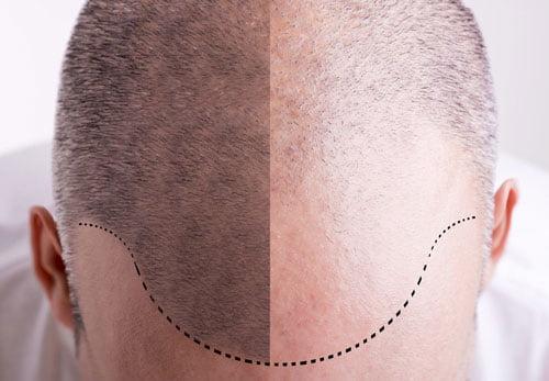 implants capillaires maroc